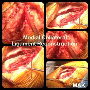 Liagament Reconstruction