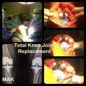 Total Knee
