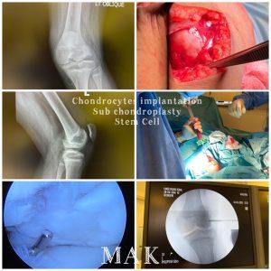 Articular cartilage repair
